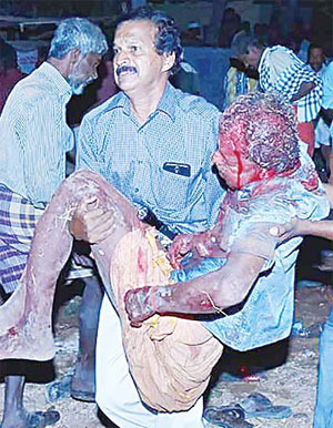 An Indian bystander carries an injured man after an explosion and fire at tthe Puttingal Devi Temple in Paravur early April 10. A major explosion and fire swept through a temple in southern India killing over 100 people after families and others had gathered for a fireworks display, a top official said. (A